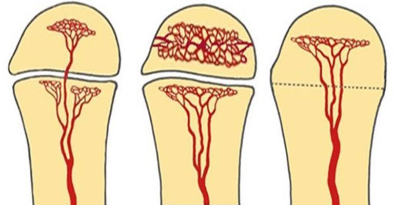 Painful hip figure 1.jpg
